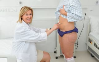 Lipotransfer